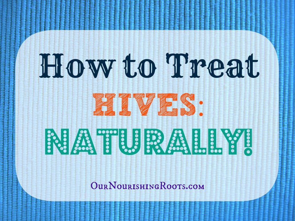 How to Treat Hives Naturally | OUR NOURISHING ROOTS #essentialoils #herbs #holistichealth #naturalmedicine